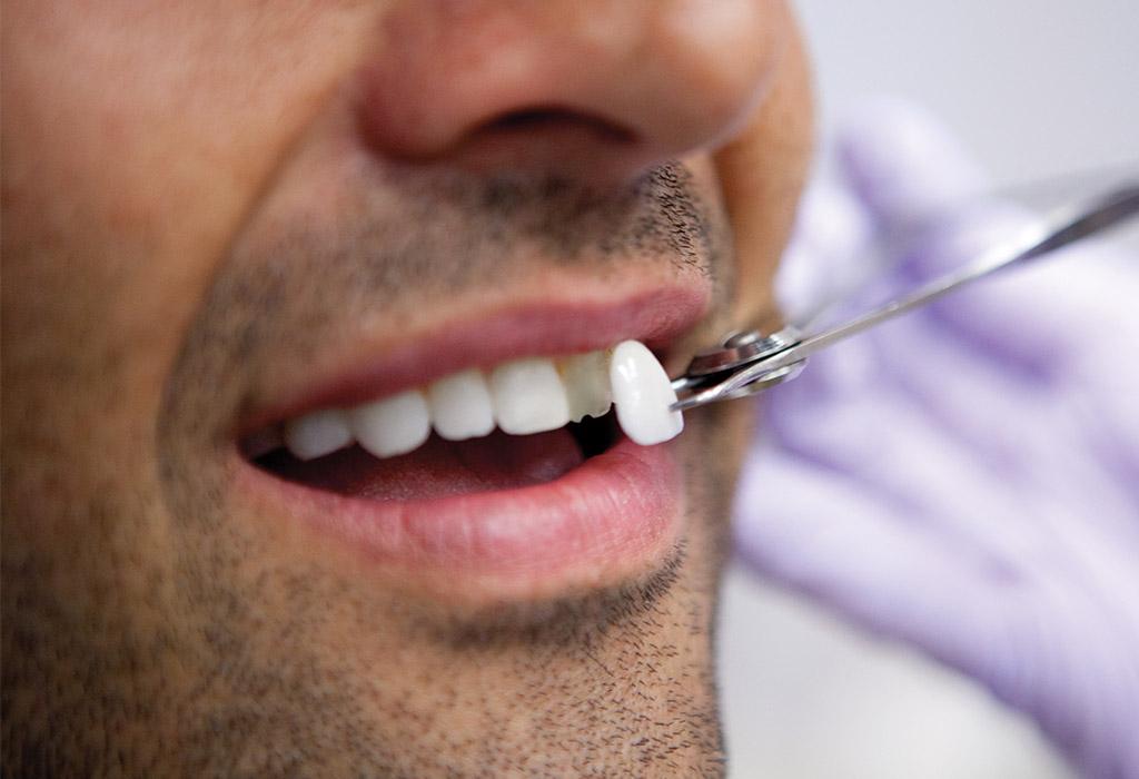 carillas dentales en Roquetes