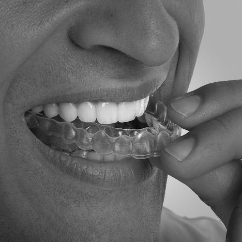 ortodoncia en Roquetes Sant Pere de Ribes