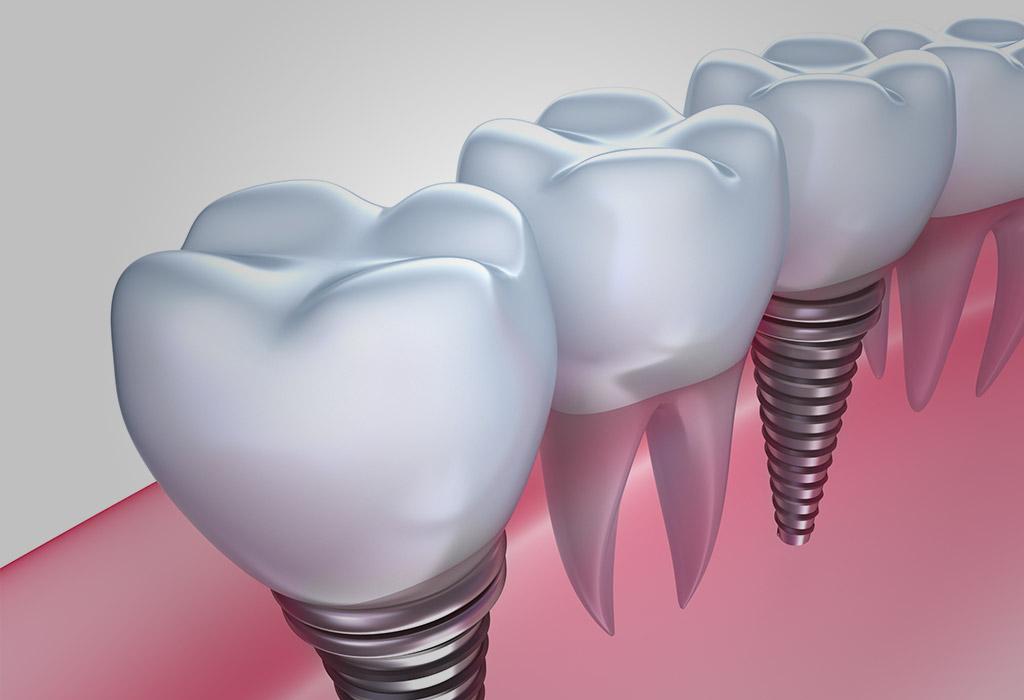 implantes dentales en Roquetes Sant Pere de Ribes