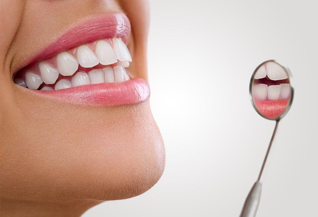 limpieza dental en Roquetes