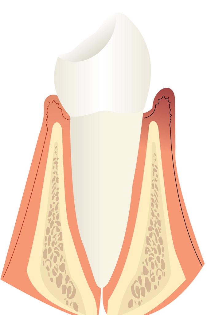 periodoncia en Roquetes Sant Pere de Ribes